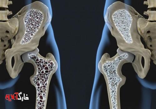 افزایش قابل توجه پوکی استخوان پس از ۵۰ سالگی
